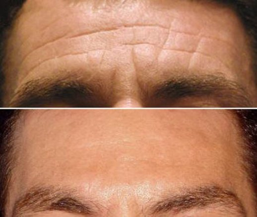 Forehead Frown Glabella Line Anti Wrinkle Treatment