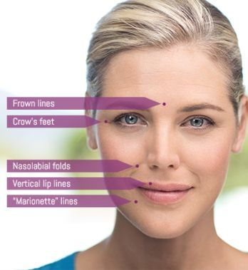 JUVÉDERM Dermal Fillers - Injectable Treatment @ Award