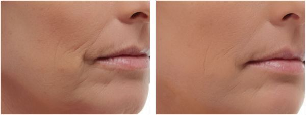 Marionette Lines | Mouth To Jaw & Chin Lines | Jawline
