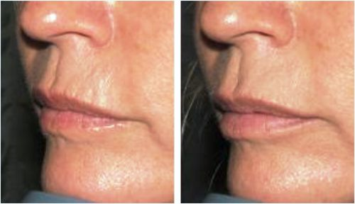 Upper Lip Lines | Mouth Wrinkles | Smokers Lines : Cosmetic