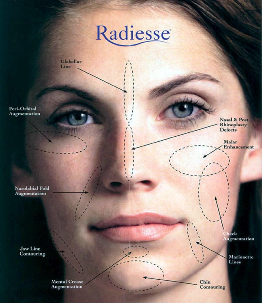RADIESSE Dermal Filler Treatment @ Award winning Karen