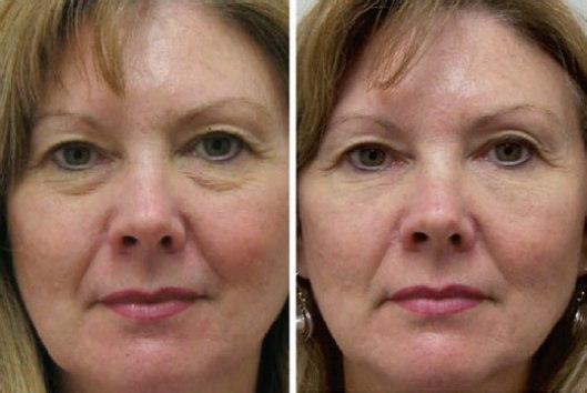 Under Eye Tear Trough Treatment From Caring Experts