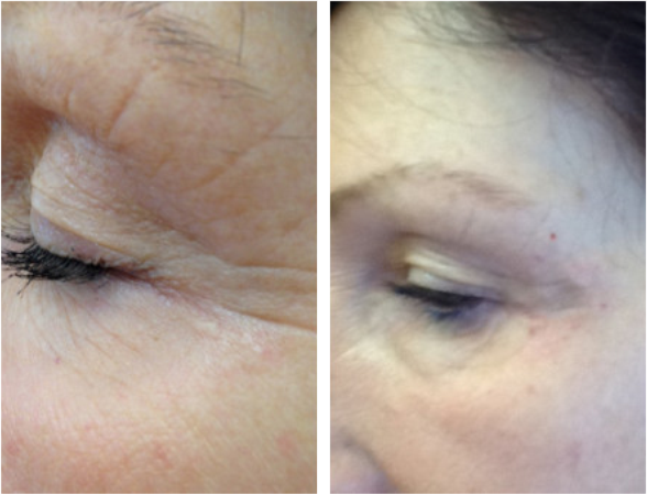 Thread Lift Treatment - the non-surgical face lift and neck-lift