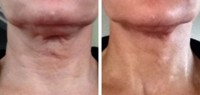 Thread Face Lift Cost